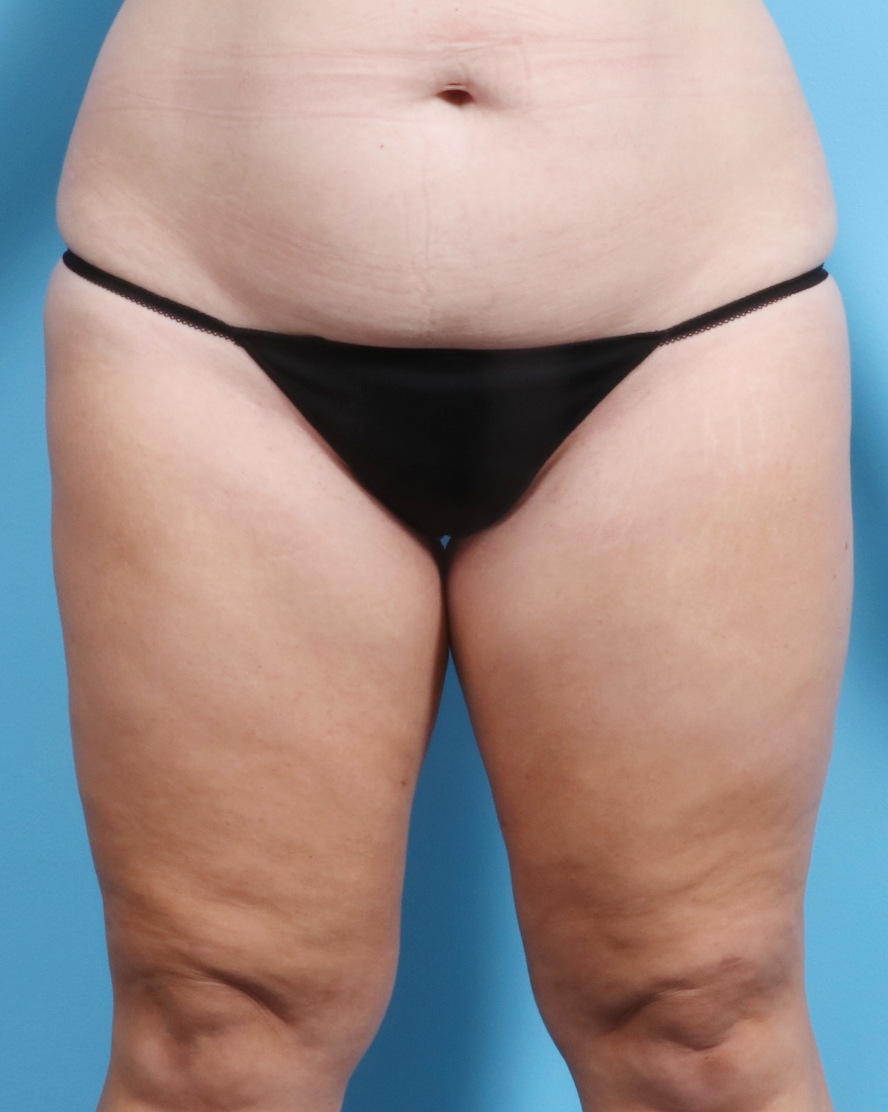 Liposuction Patient Photo - Case 1257 - after view-0