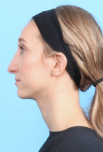 Rhinoplasty - Case 1321 - After