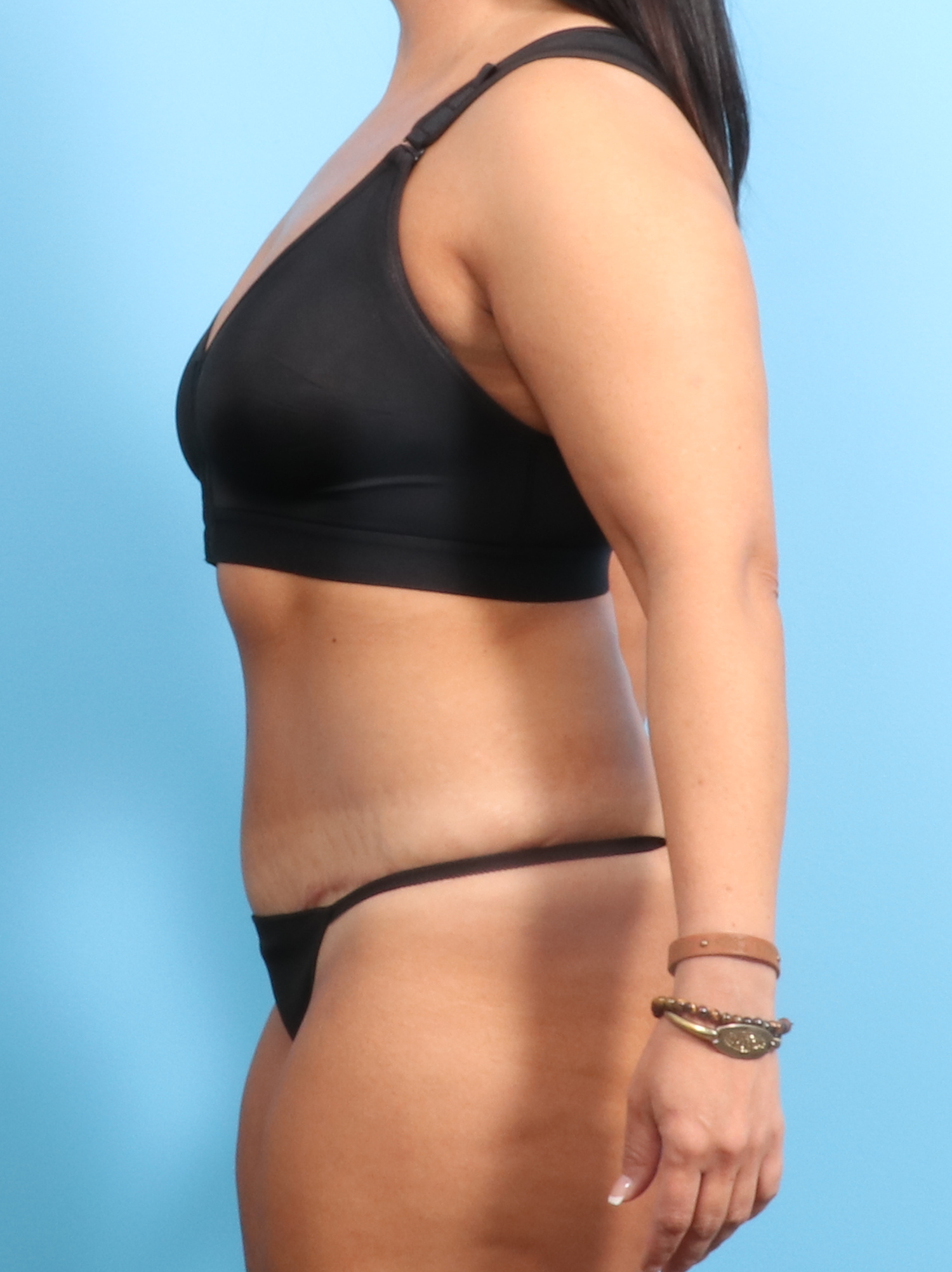 Tummy Tuck Patient Photo - Case 1526 - after view-2