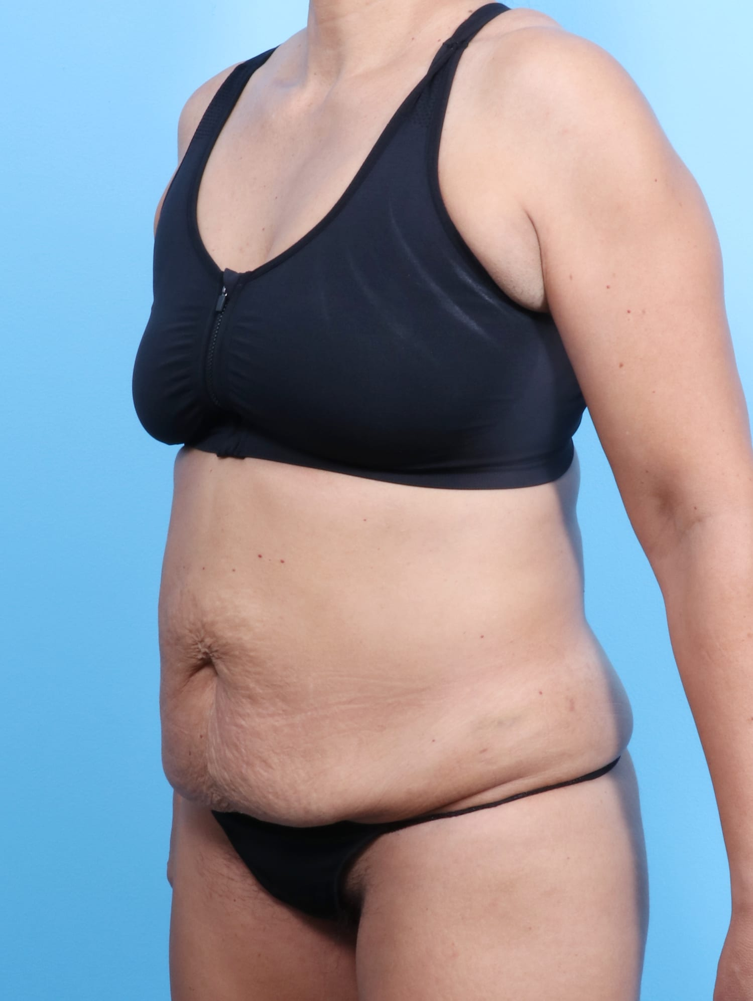 Tummy Tuck Patient Photo - Case 1675 - before view-1