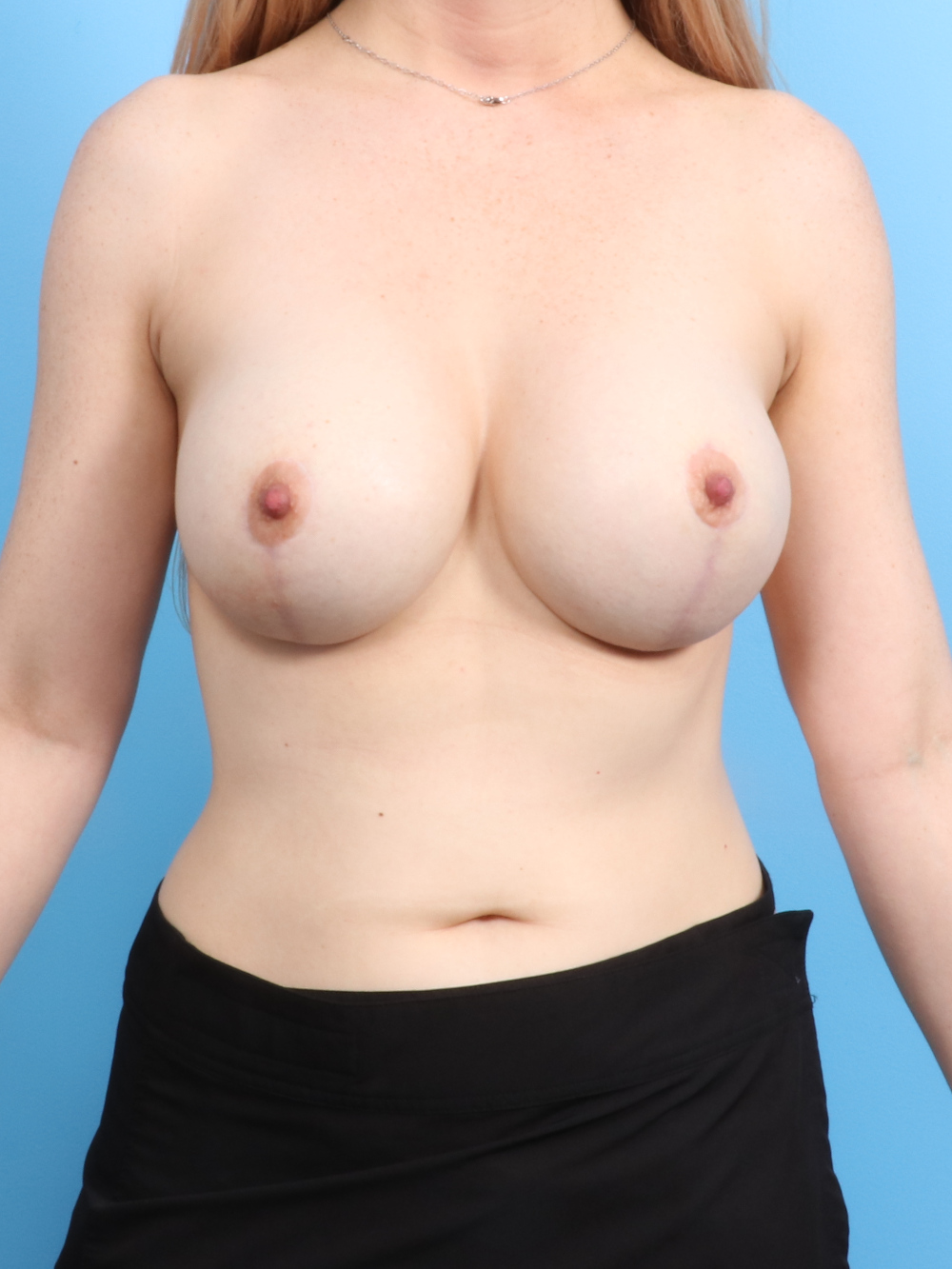 Breast Implant Revision Patient Photo - Case 1714 - after view