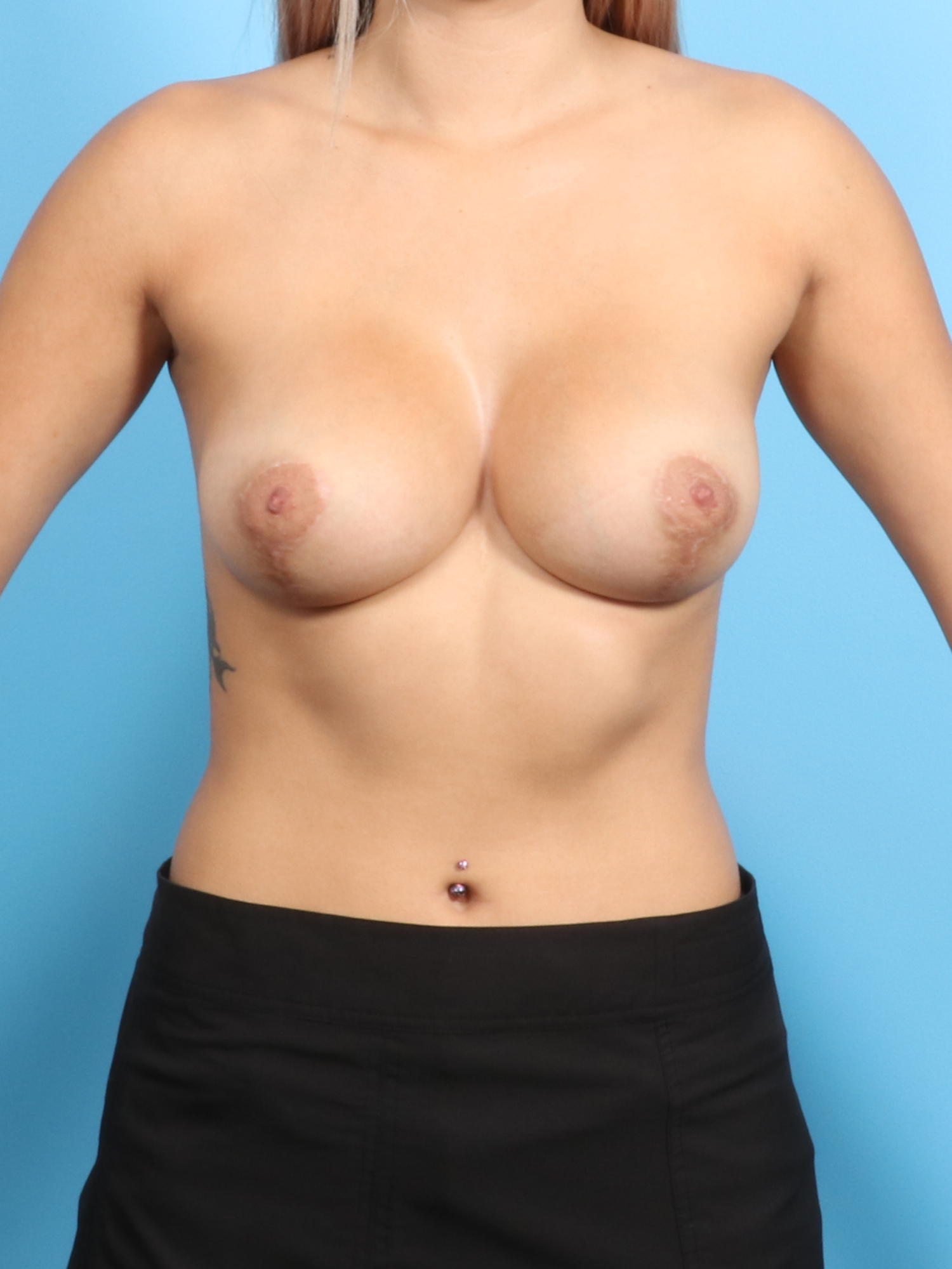 Breast Lift with Implants Patient Photo - Case 1822 - after view