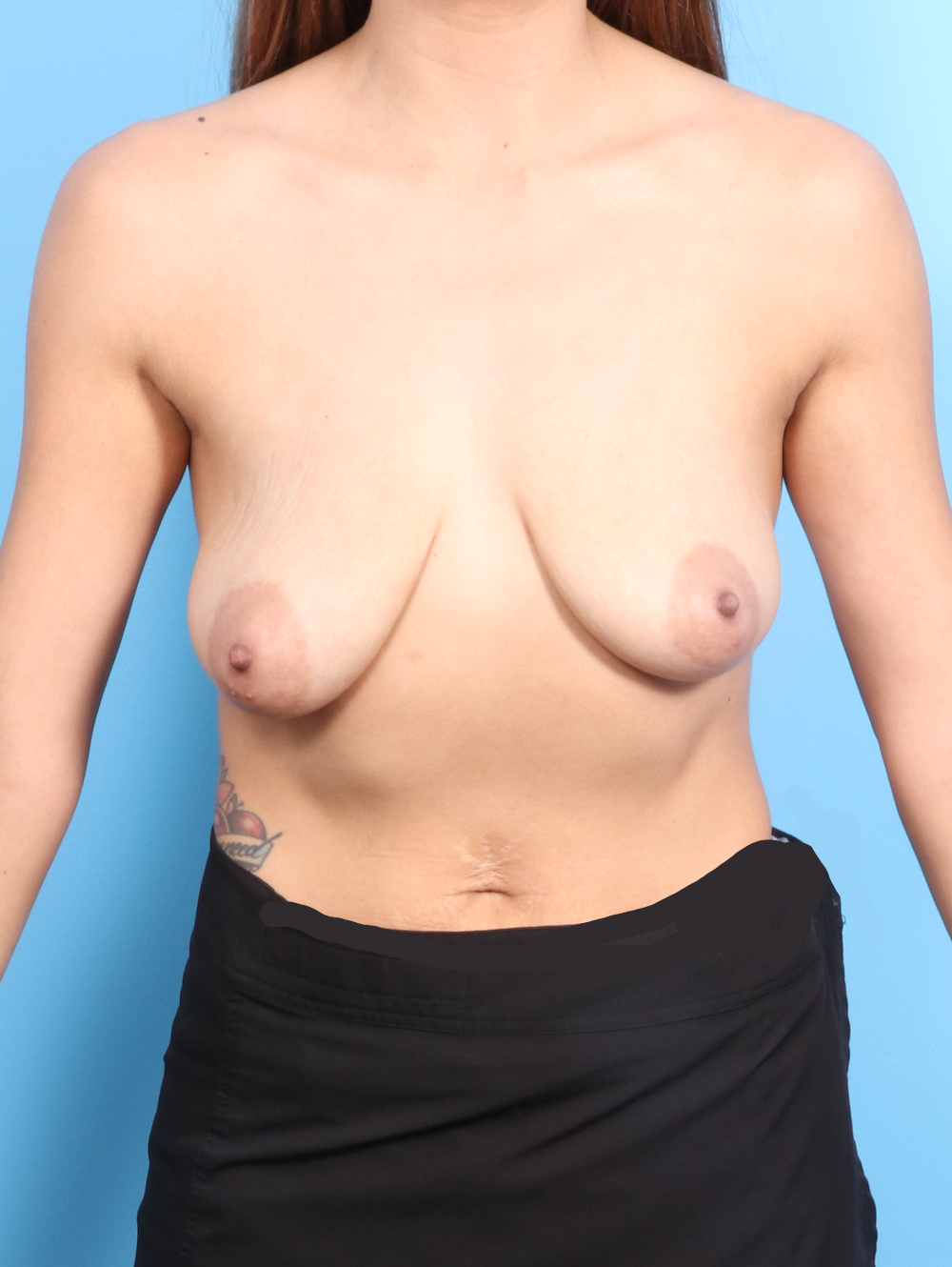 Breast Lift with Implants Patient Photo - Case 2024 - before view-