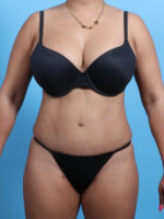 Tummy Tuck - Case 2362 - After