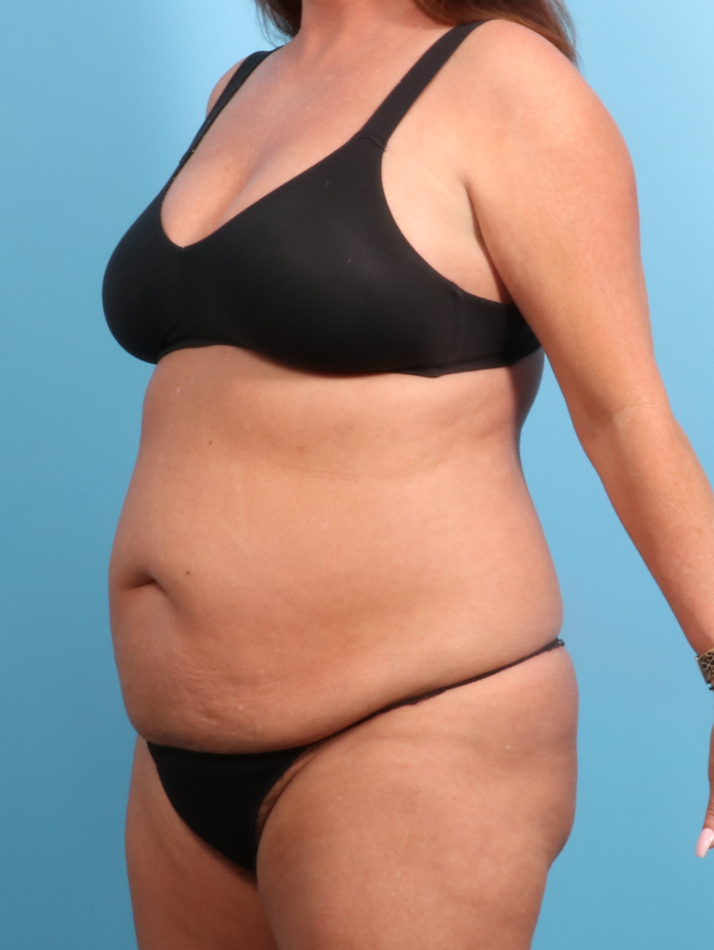 Tummy Tuck Patient Photo - Case 2330 - before view-1