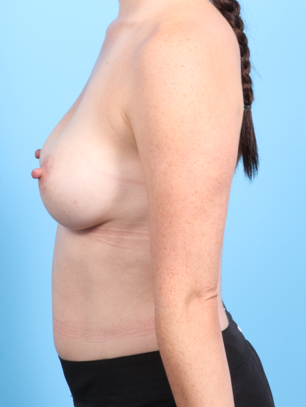 Breast Implant Revision Patient Photo - Case 2378 - before view-2