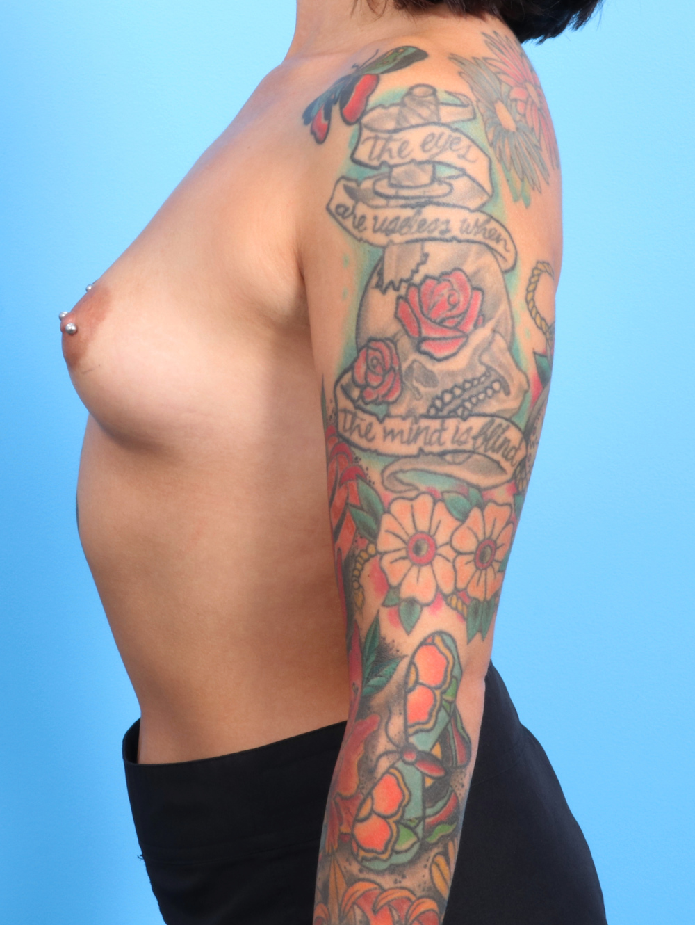 Breast Augmentation Patient Photo - Case 2322 - before view-2