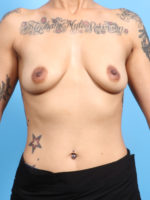 Breast Augmentation - Case 2460 - Before