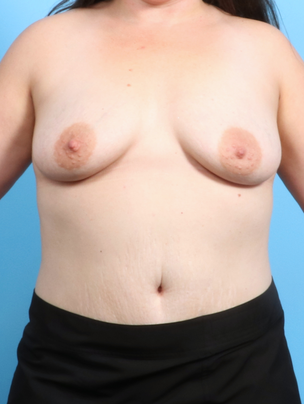 Breast Augmentation Patient Photo - Case 2593 - before view-