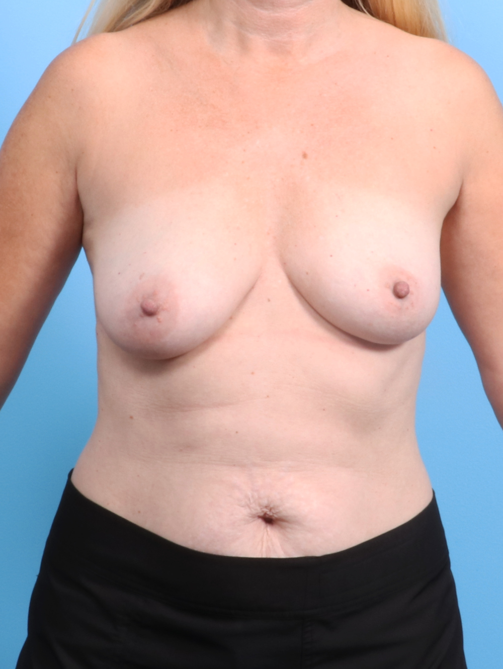 Breast Lift with Implants Patient Photo - Case 2695 - before view-