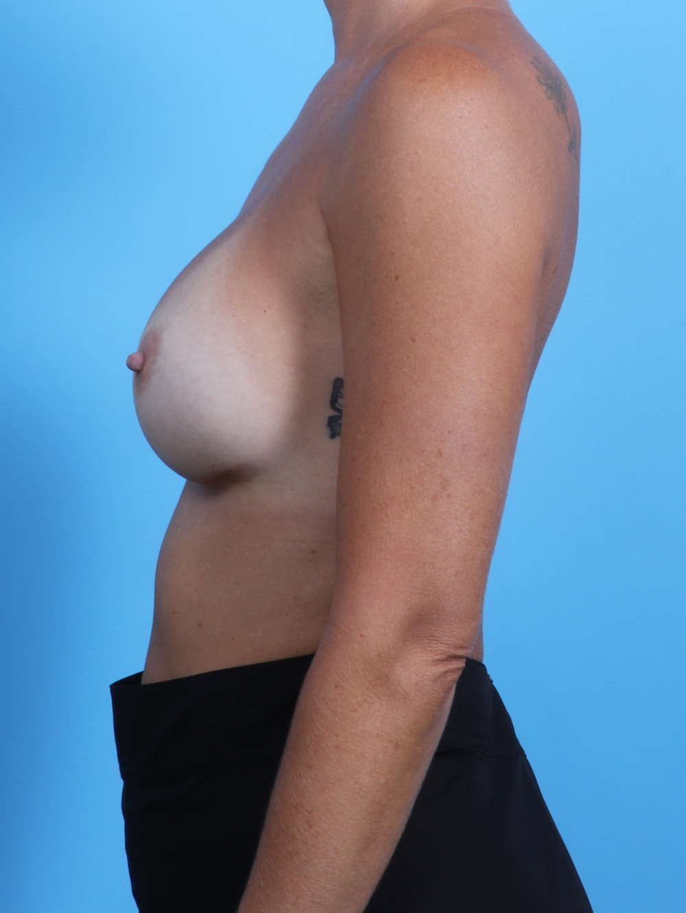 Breast Implant Revision Patient Photo - Case 2639 - after view-2