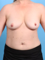 Breast Lift with Implants - Case 2779 - Before